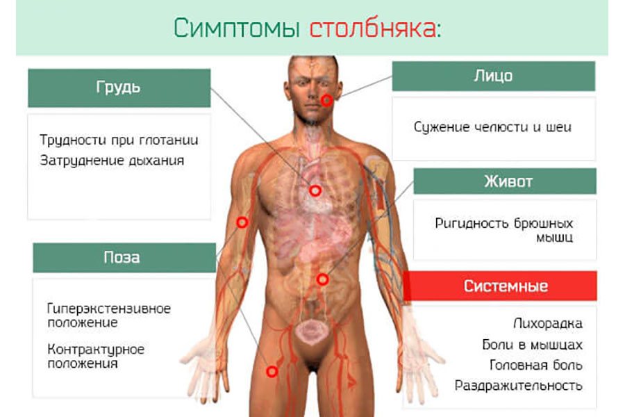 симптомы столбняка