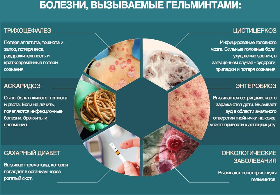 какие болезни вызывают гельминты